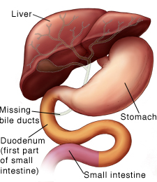 Front view of liver, stomach, and duodenum, showing missing bile ducts.