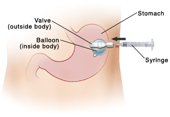 Front view of abdomen showing gastrostomy tube, balloon, and syringe..
