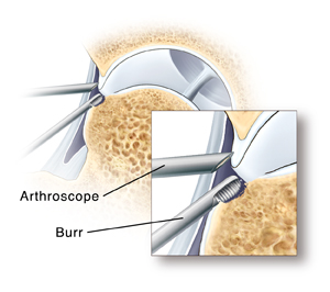 Closeup of arthroscope tip in hip joint and burr removing excess bone.