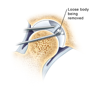 Cross section of hip joint showing arthroscopic instruments removing loose piece of tissue from joint. Closeup of arthroscope tip in hip joint and instrument removing loose body.