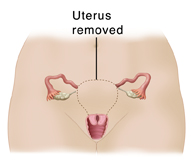 Front view of female pelvis showing reproductive organs. Dotted line around uterus shows subtotal hysterectomy.