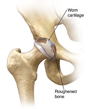 Front view of hip joint showing arthritis.
