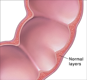 Cross section of colon showing the normal layers of intestine wall.