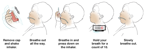 Five steps in using metered-dose inhaler without a spacer.