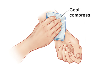 Hand placing ice pack on inner forearm of opposite arm.
