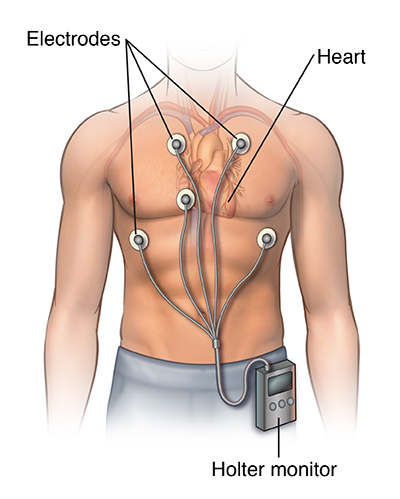 Man's chest showing the heart. Electrodes are positioned on the skin and connected to a Holter monitor on the waistband of his pants.