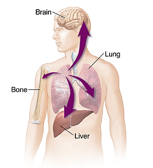 Outline of male figure with arrows showing lung cancer spreading to liver, other lung, bone, and brain.