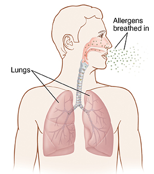 Front view of man's head and chest showing allergens being breathed into lungs.