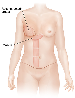 Front view of female outline showing flap breast reconstruction.
