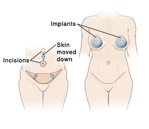 Two images of female abdomen: First image shows incisions and tissue removed for abdominoplasty. Second image shows final result of abdominoplasty plus breast implants.